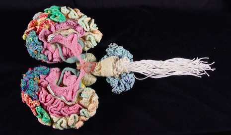 The_Knitted_Brain