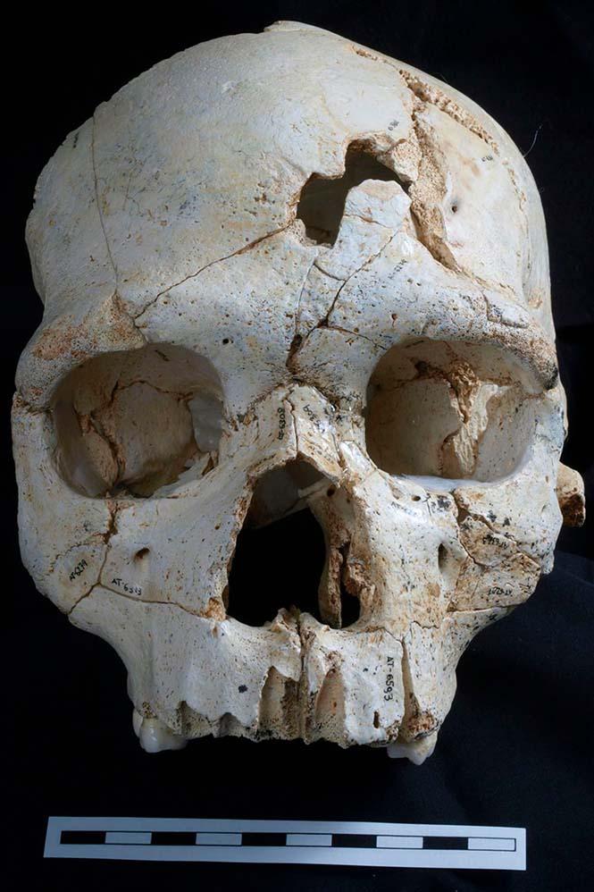 (Görsel: The Guardian)  Tarihin en eski cinayetine ait kafatası İspanya'da bulundu D C3 BCnyan C4 B1n en eski cinayeti 3