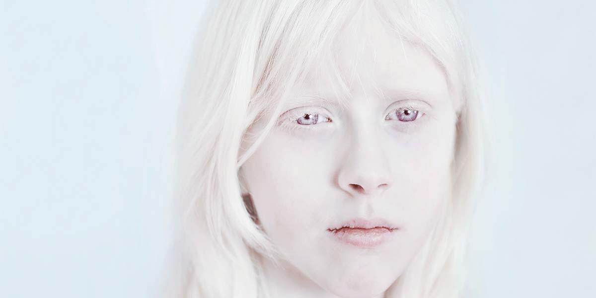 Sanne De Wilde'ın objektifinden albinoların çarpıcı portreleri