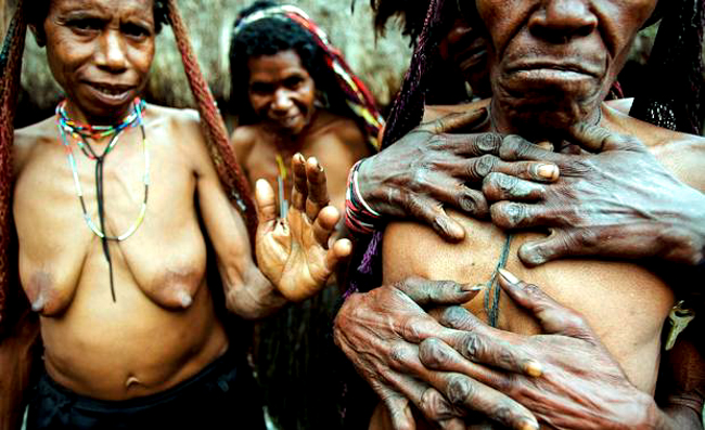 3_Indonesian-tribe-amputates