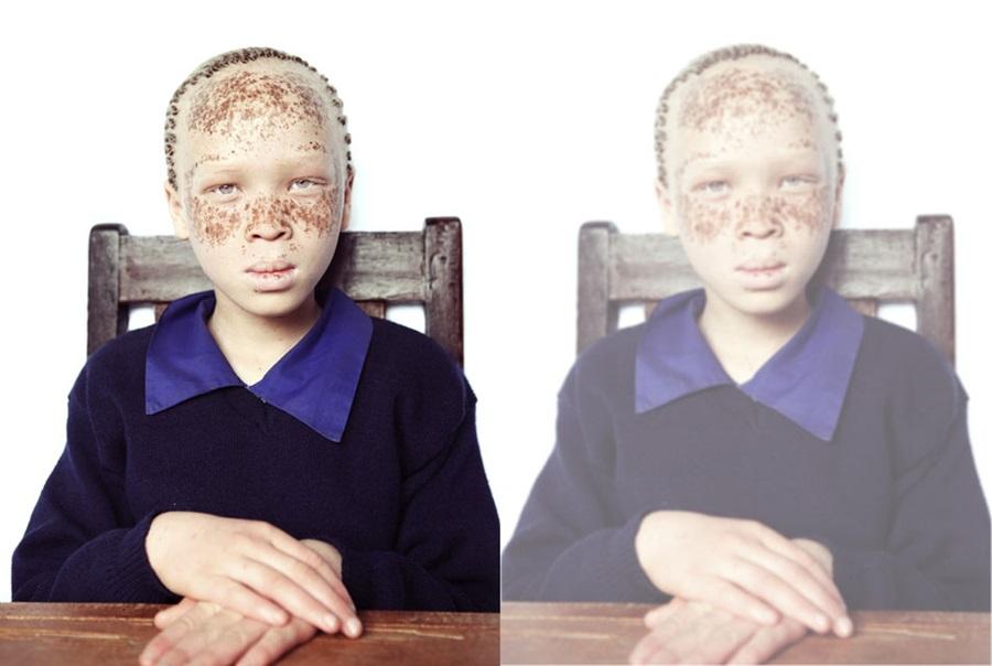 Kendilerini nasıl gördüklerini anlatan görme engelli çocuk portreleri 3