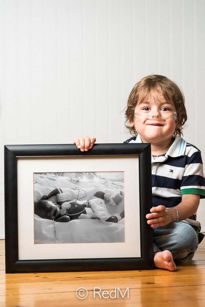 """premature 4  Prematüre çocukların """"önce ve sonra"""" fotoğrafları size güç verecek premature baby portraits les premas red methot 10"""