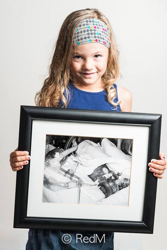 """premature 5  Prematüre çocukların """"önce ve sonra"""" fotoğrafları size güç verecek premature baby portraits les premas red methot 12"""