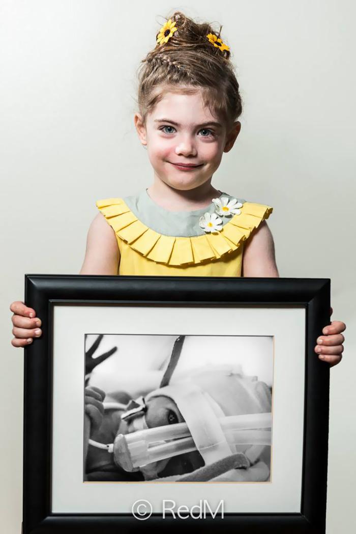 """premature 6  Prematüre çocukların """"önce ve sonra"""" fotoğrafları size güç verecek premature baby portraits les premas red methot 13"""