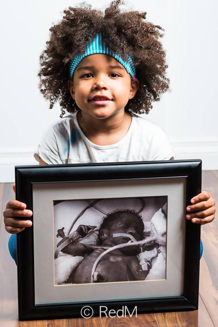 """premature 7  Prematüre çocukların """"önce ve sonra"""" fotoğrafları size güç verecek premature baby portraits les premas red methot 14"""