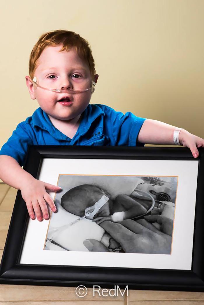 """premature 8  Prematüre çocukların """"önce ve sonra"""" fotoğrafları size güç verecek premature baby portraits les premas red methot 15"""