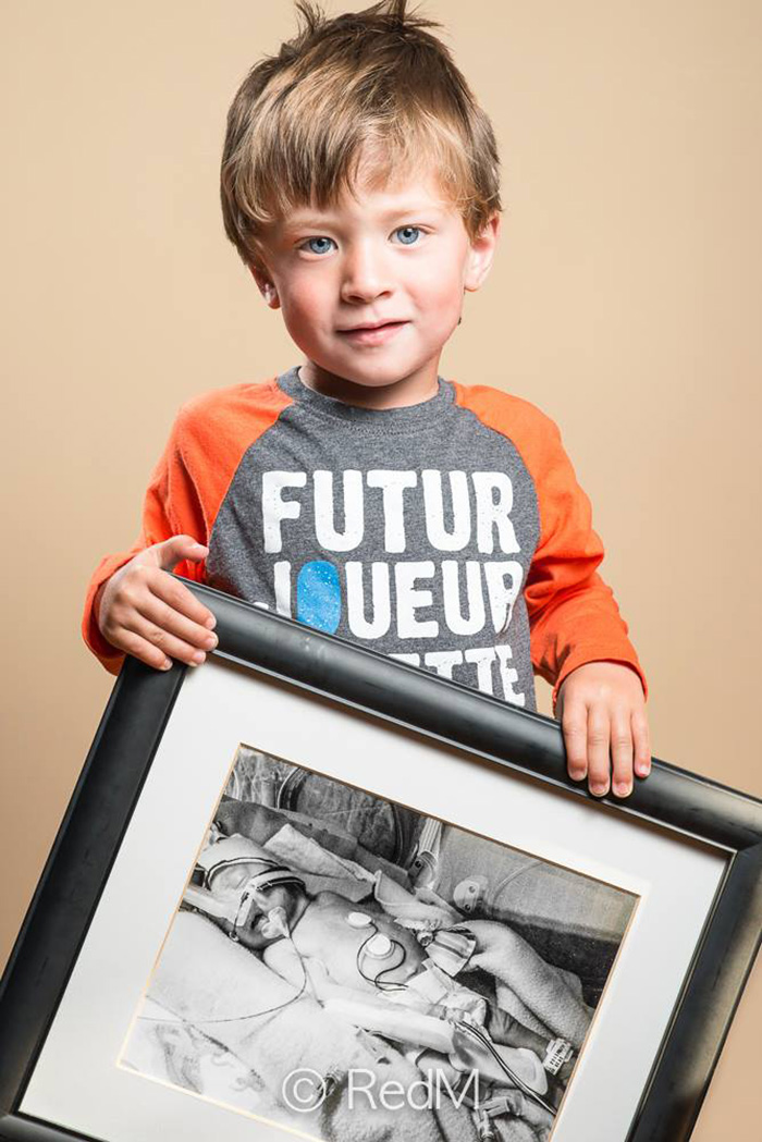 """premature 10  Prematüre çocukların """"önce ve sonra"""" fotoğrafları size güç verecek premature baby portraits les premas red methot 18"""