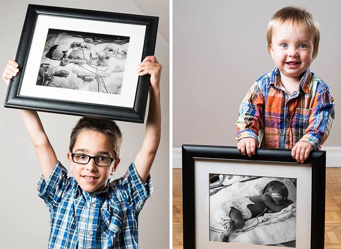 """premature 15  Prematüre çocukların """"önce ve sonra"""" fotoğrafları size güç verecek premature baby portraits les premas red methot 23"""