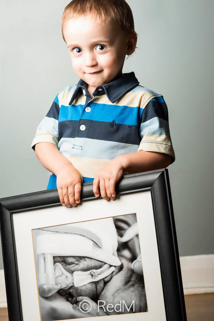 """premature 1  Prematüre çocukların """"önce ve sonra"""" fotoğrafları size güç verecek premature baby portraits les premas red methot 4"""