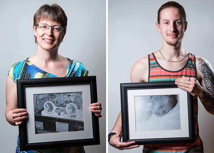 """premature 3  Prematüre çocukların """"önce ve sonra"""" fotoğrafları size güç verecek premature baby portraits les premas red methot 9"""