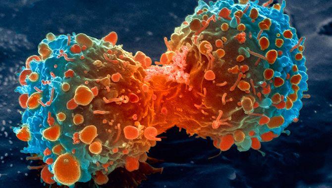 Kanser Hücresi 1  İşlenmiş et tüketiminin kanseri tetiklediğini resmen onaylandı Kanser H C3 BCcresi 11
