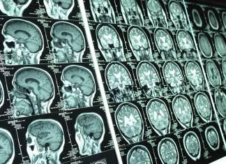 """Yapılan çalışmalar """"erkek"""" ve """"dişi"""" beyin ayrımının yapılamayacağını ortaya çıkardı"""