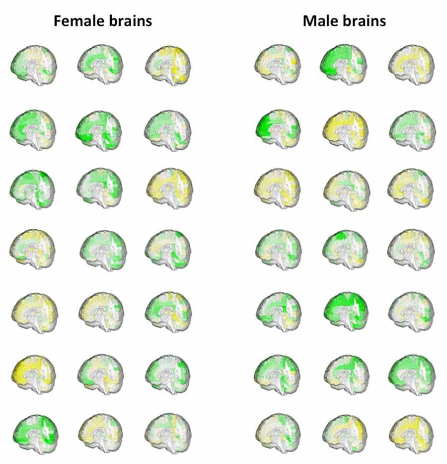 """Erkek beyin, dişi beyin 2  Yapılan çalışmalar """"erkek"""" ve """"dişi"""" beyin ayrımının yapılamayacağını ortaya çıkardı Erkek beyin di C5 9Fi beyin 2"""