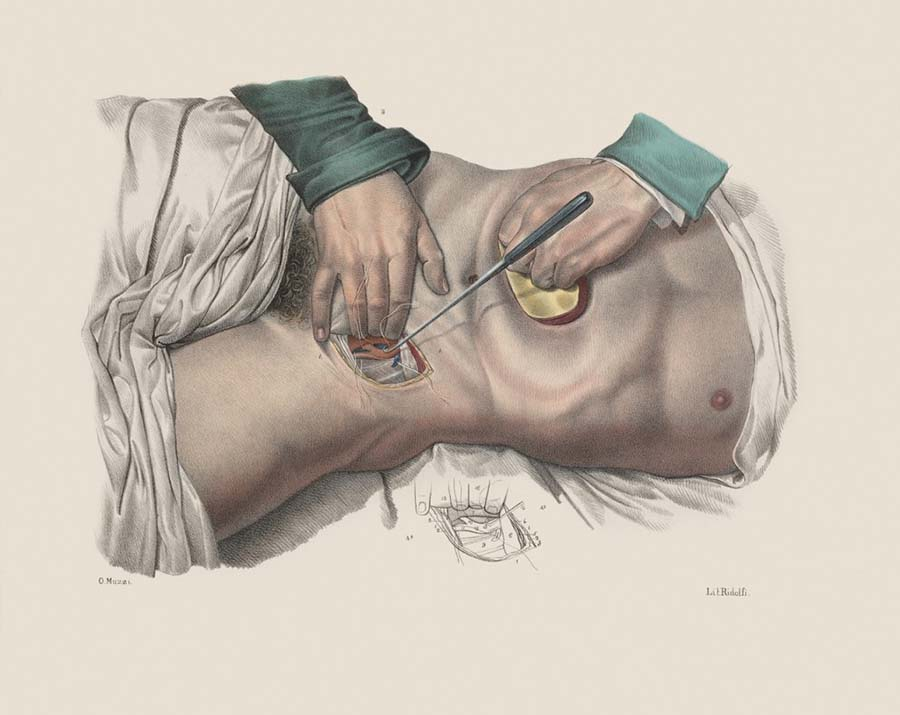 1)Kasık bölgesinde atardamara baskı uygulayarak kan akışını durdurma. ( Iconografia d'anatomia chirurgica e di medicina operatoria, 1841), Floransa.