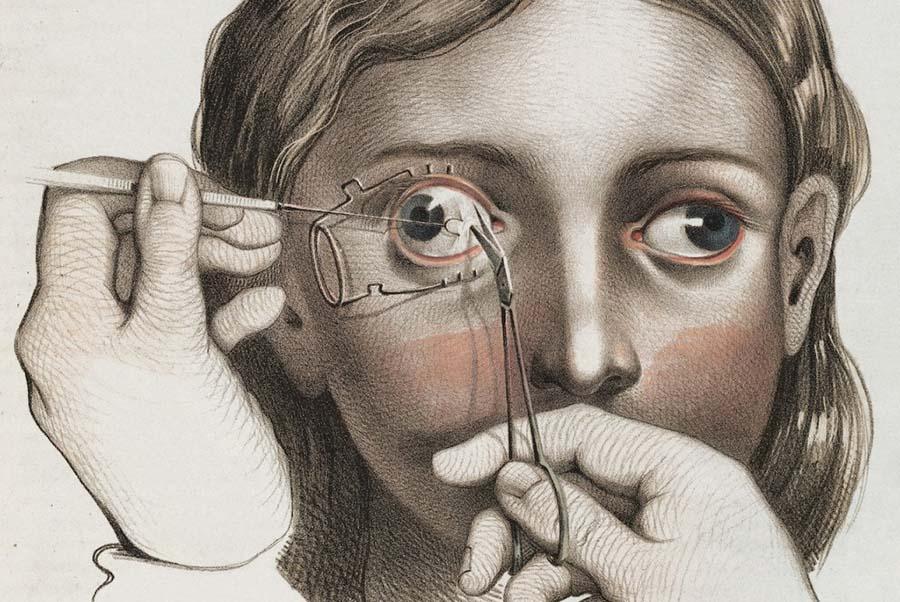 Şaşılığı düzeltmek için sağ gözdeki rektusa uygulanan cerrahi işlem (1846)