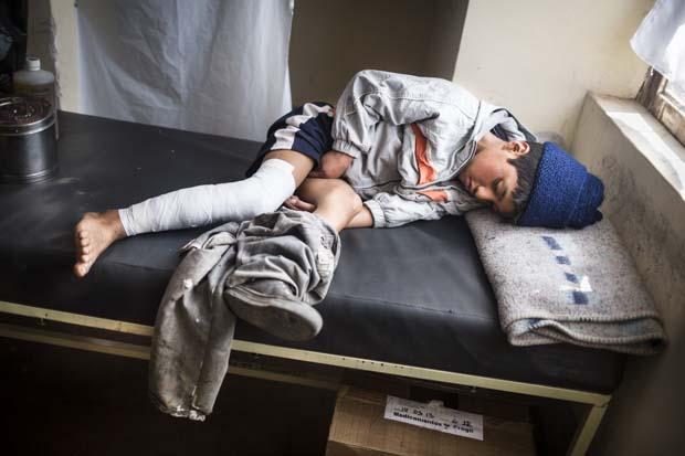 """Paul komşusunun evinde uyurken, komşu evin 12 yaşındaki çocuğu Paul'un bacaklarına alkol döküp yakmış. Bacağı ikinci derece yanıklarla kaplı olmasına rağmen, annesi ne bir doktor çağırabilmiş ne de onu hastaneye götürebilmiş. Ancak yerel STK """"cepromin"""" meseleyi öğrenince bir tıbbi müdahale görebilmiş."""