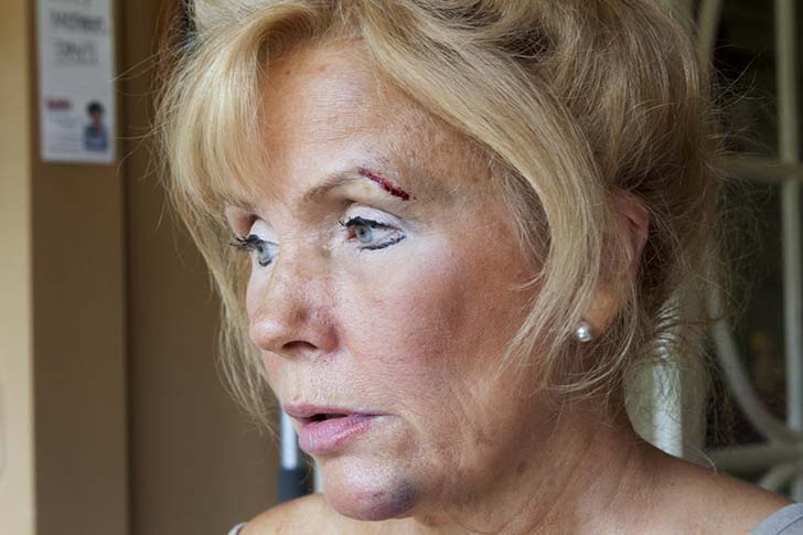 bipolar-anne-5  Yedi yıl boyunca annesinin bipolar rahatsızlığını fotoğrafladı bipolar anne 5