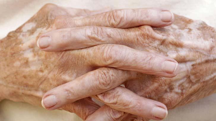 vitiligo-2